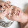 Skin Laser Treatment Tips