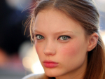 Natural Ways To Get Rosy Cheeks