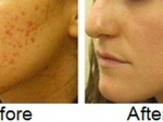 Effective Ways to Remove Acne Scars At Home