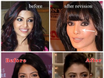 Bollywood Actresses Horrible Plastic Surgery