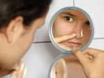Home Remedy for Prevention of Skin problems
