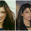 Pakistani Actresses With Face Surgeries