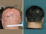 Treatment of Baldness with Medicine for Four Months