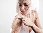 Essential Common Facts about Dry Skin