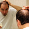 Natural Homemade Treatment to Get Rid of Baldness