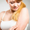 Home Remedies To Get Rid Of Prickly Heat