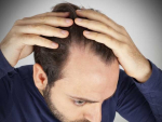 Protection of Hair Avoid Baldness