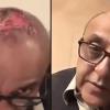 Sajid Hassan Unfortunate Hair Transplant Mishap