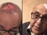 Sajid Hassan Unfortunate Hair Transplant Mishap