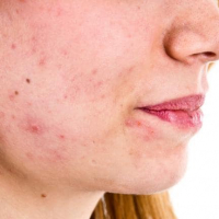 Hormonal Acne and its Treatment