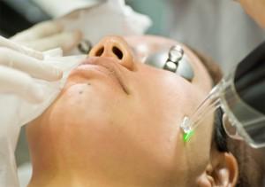 Skin Laser Treatment Tips
