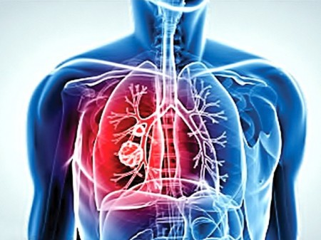 Lung Cancer takes 20 years to come forth