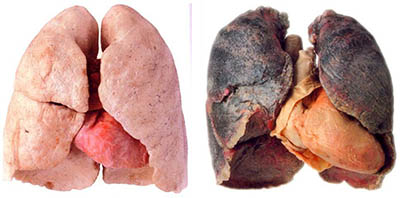 Lung Cancer appears after 20 years