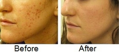 Remove Acne Scars At Home