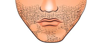 Best Way to loss Beard Hair