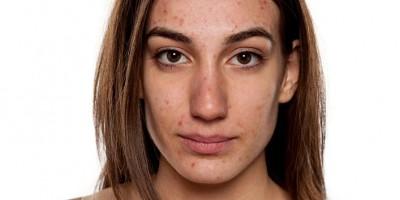 Hormonal Acne