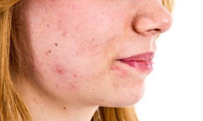 hormonal Acne And its Cure